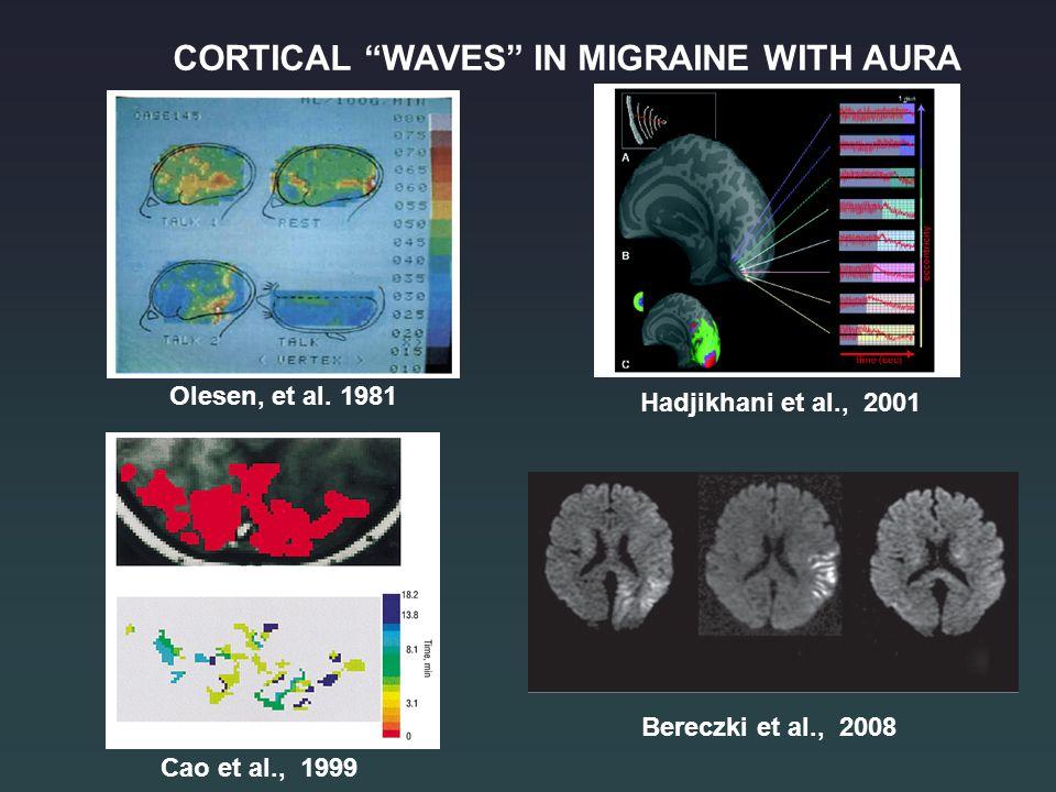 """Olesen, et al. 1981 Hadjikhani et al., 2001 Cao et al., 1999 CORTICAL """"WAVES"""" IN MIGRAINE WITH AURA Bereczki et al., 2008"""