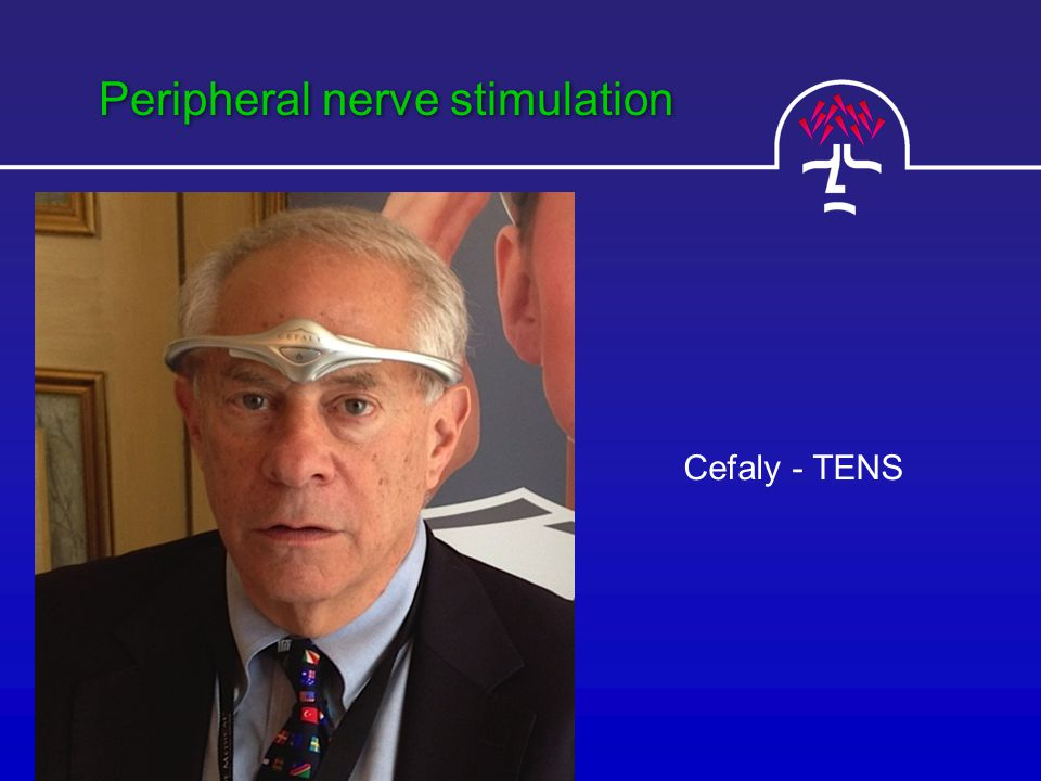 Peripheral nerve stimulation Cefaly - TENS