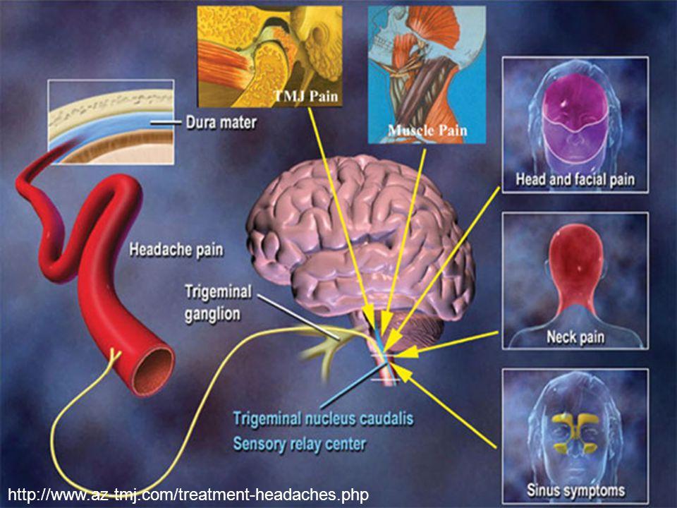ConclusionConclusion 3.Tailor triptan use based on patient and migraine characteristics (CORN).