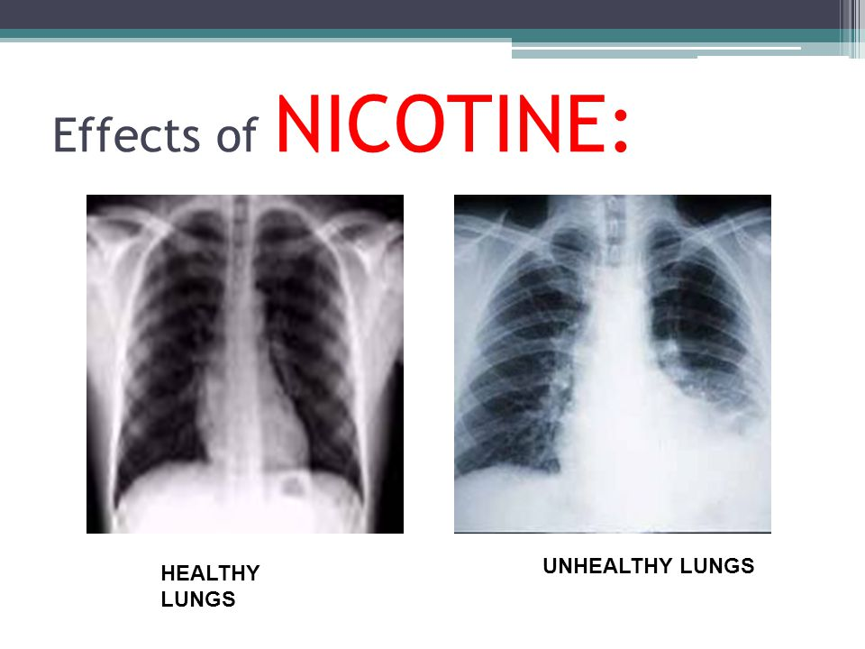 Effects of NICOTINE: HEALTHY LUNGS UNHEALTHY LUNGS