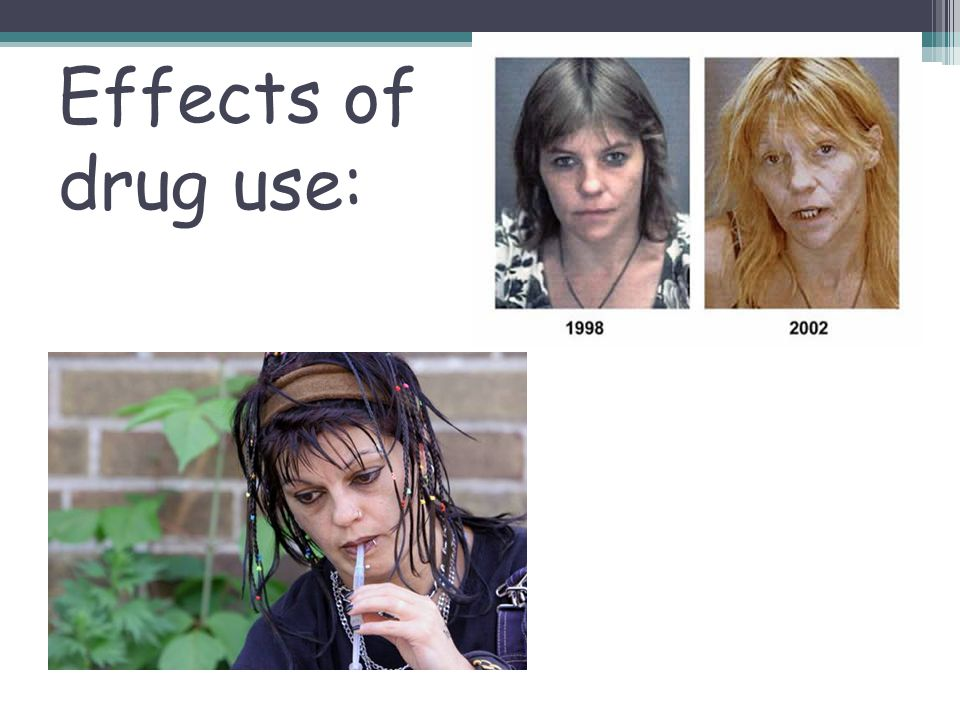 Effects of drug use: