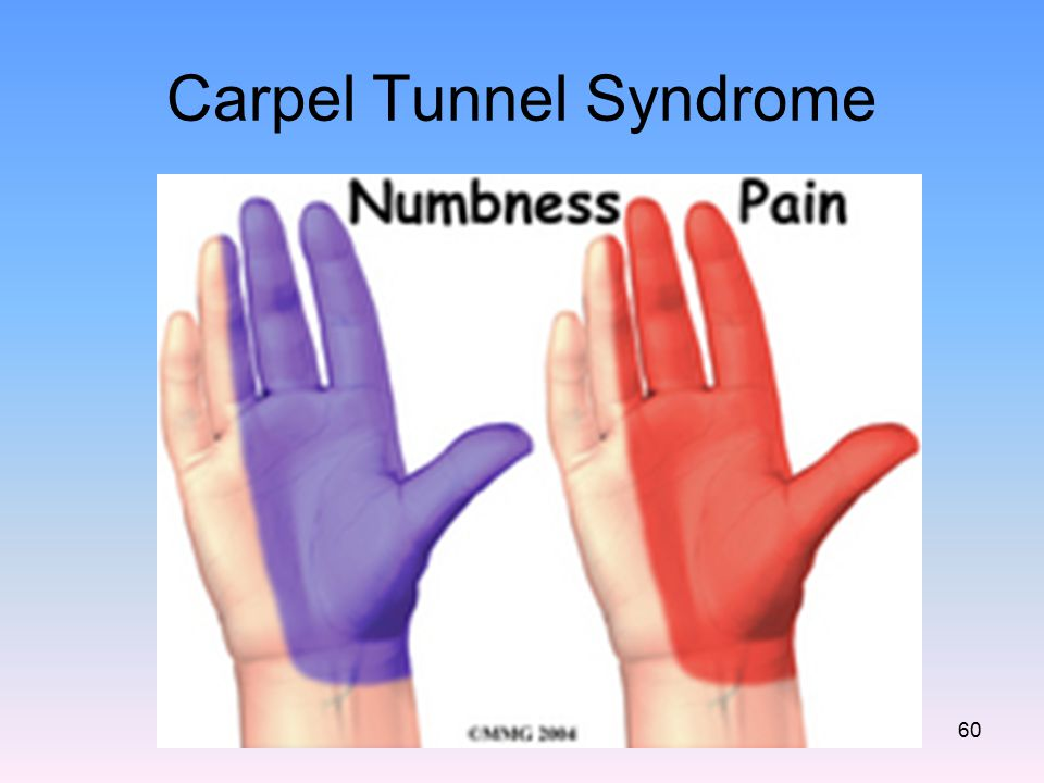 Carpel Tunnel Syndrome 60