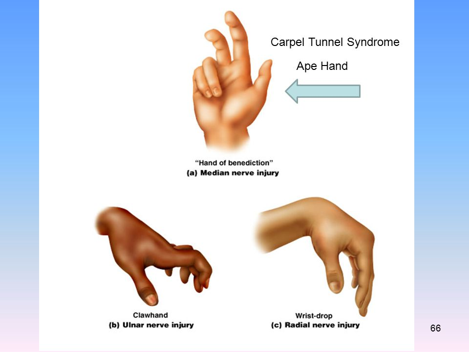 Carpel Tunnel Syndrome Ape Hand 66
