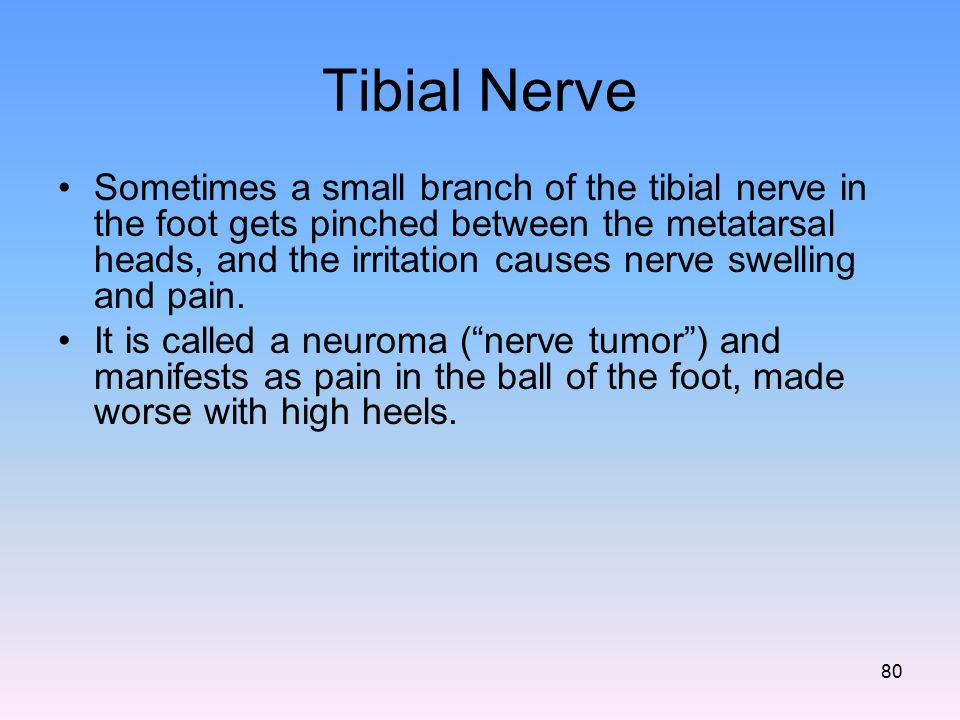 Tibial Nerve Sometimes a small branch of the tibial nerve in the foot gets pinched between the metatarsal heads, and the irritation causes nerve swell