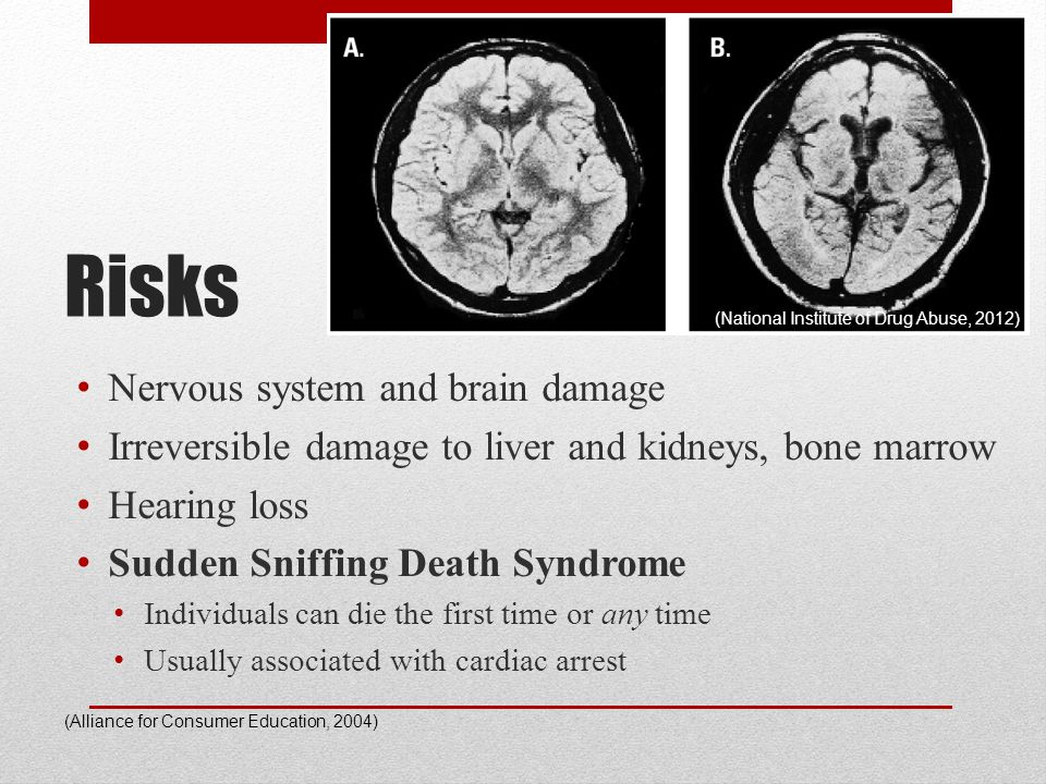 Risks Nervous system and brain damage Irreversible damage to liver and kidneys, bone marrow Hearing loss Sudden Sniffing Death Syndrome Individuals ca