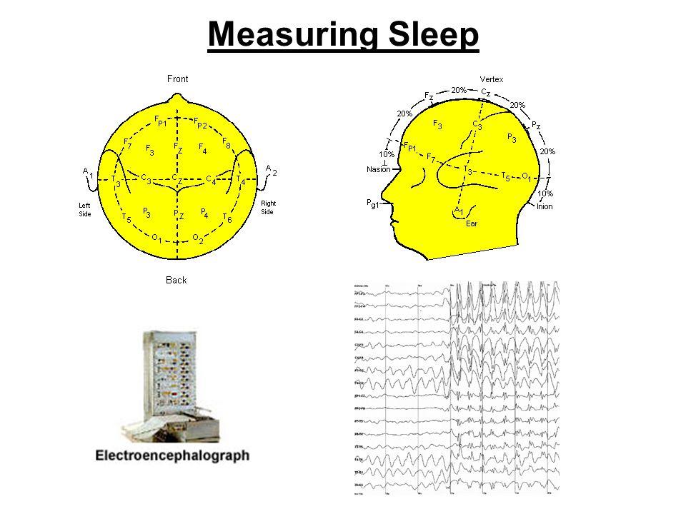 Brain Mechanisms REM Brain stem (reticular activating system) (locus coeruleus) (raphe n.) Sleep EEG desyn No muscle ACh 5-HT NE