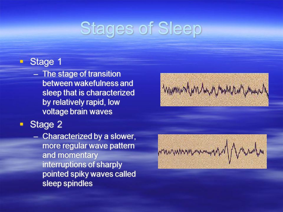 Stages of Sleep  Stage 1 –The stage of transition between wakefulness and sleep that is characterized by relatively rapid, low voltage brain waves 
