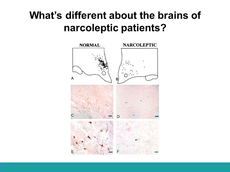 If narcolepsy is a disorder where you fall asleep uncontrollably, could you use caffeine as a treatment?