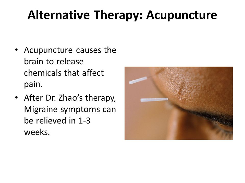 Alternative Therapy: Acupuncture Acupuncture causes the brain to release chemicals that affect pain. After Dr. Zhao's therapy, Migraine symptoms can b