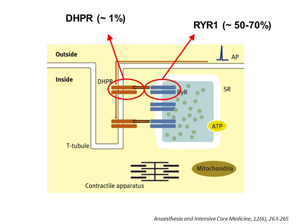 RYR1 (~ 50-70%) DHPR (~ 1%) Anaesthesia and Intensive Care Medicine, 12(6), 263-265