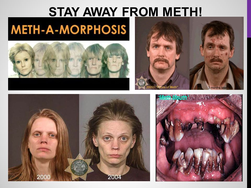 STAY AWAY FROM METH!