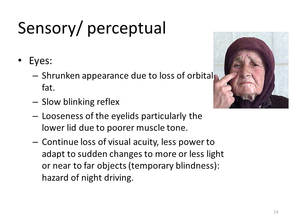 14 Sensory/ perceptual Eyes: – Shrunken appearance due to loss of orbital fat.