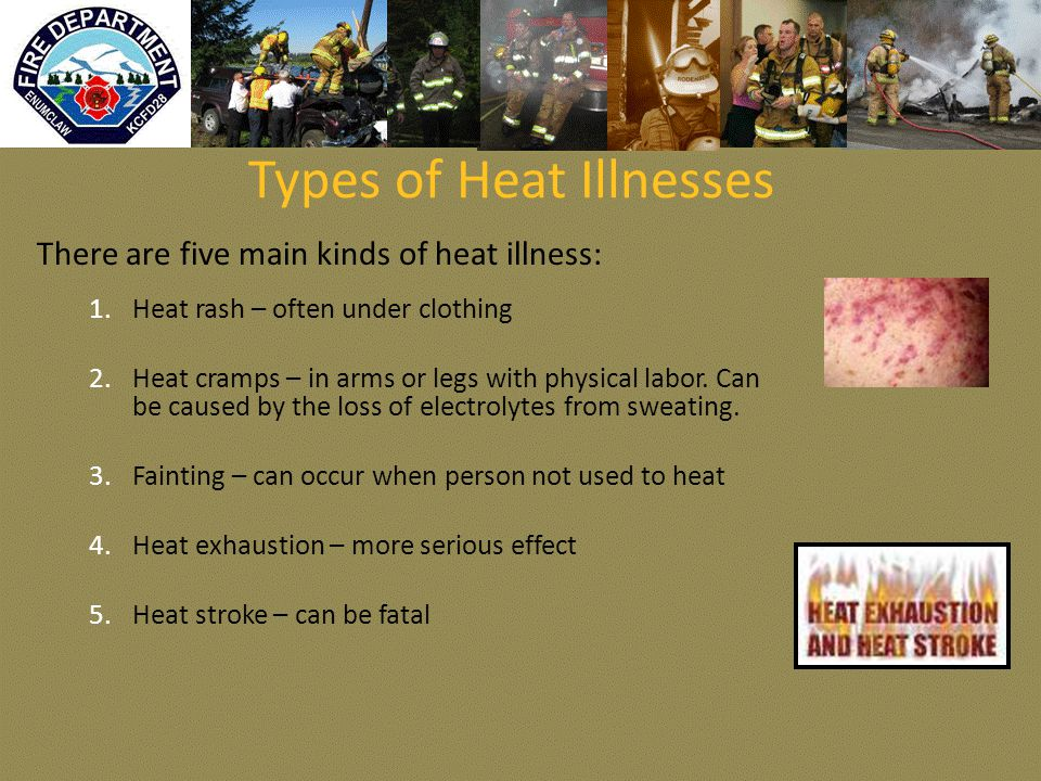 Types of Heat Illnesses There are five main kinds of heat illness: 1.Heat rash – often under clothing 2.Heat cramps – in arms or legs with physical labor.