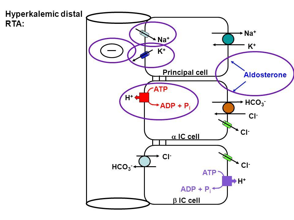 Hyperkalemic distal RTA: Na + K+K+ K+K+ Principal cell  IC cell  IC cell HCO 3 - Cl - HCO 3 - Cl - H+H+ ATP ADP + P i H+H+ ATP ADP + P i Cl - Aldosterone
