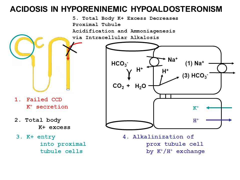 ACIDOSIS IN HYPORENINEMIC HYPOALDOSTERONISM 2. Total body K+ excess K+K+ 3. K+ entry into proximal tubule cells HCO 3 - (1) Na + (3) HCO 3 - H+H+ CO 2