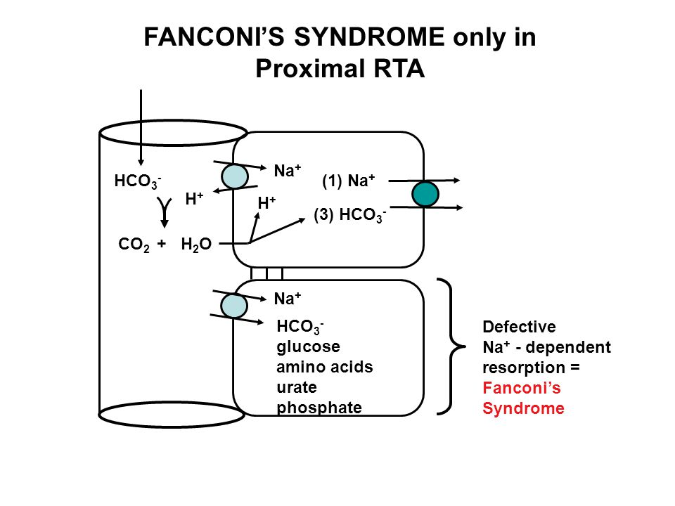 FANCONI'S SYNDROME only in Proximal RTA HCO 3 - (1) Na + (3) HCO 3 - H+H+ CO 2 H2OH2O + H+H+ Na + HCO 3 - glucose amino acids urate phosphate Defectiv