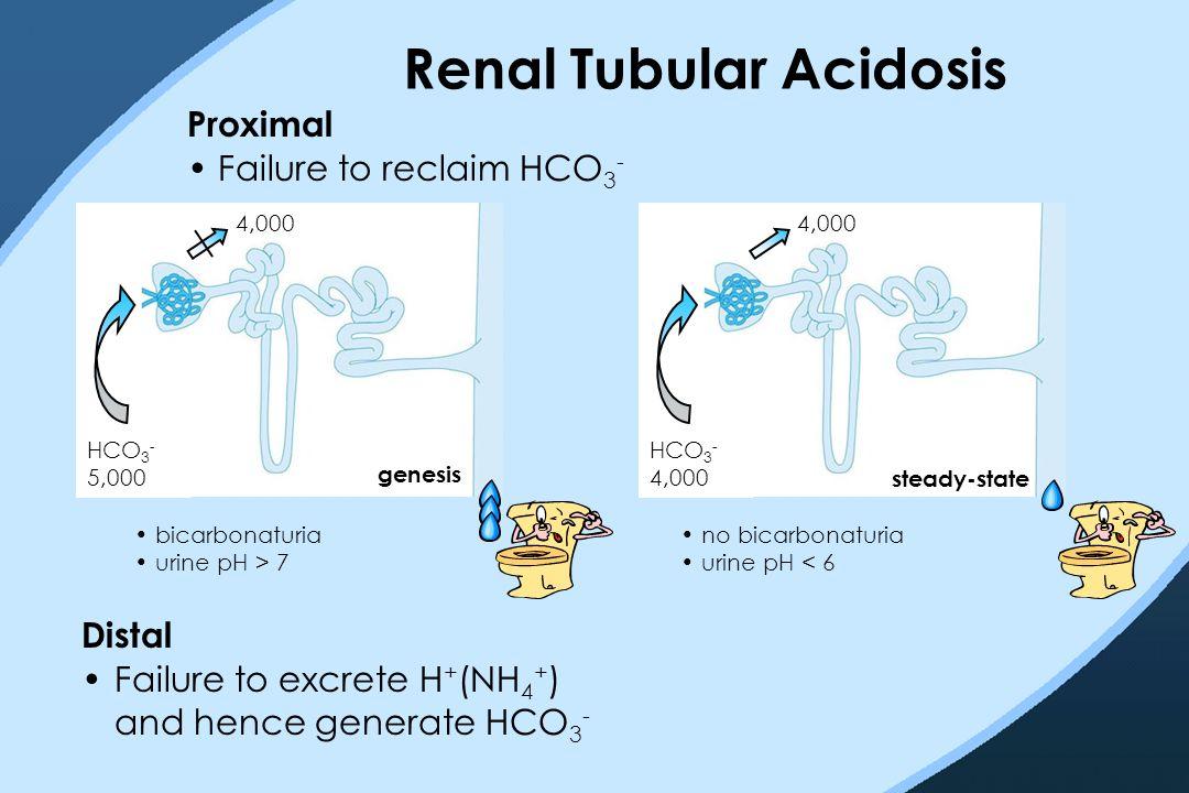 Renal Tubular Acidosis HCO 3 - 5,000 4,000 Proximal Failure to reclaim HCO 3 - genesis HCO 3 - 4,000 4,000 steady-state bicarbonaturia urine pH > 7 no bicarbonaturia urine pH < 6 Distal Failure to excrete H + (NH 4 + ) and hence generate HCO 3 -