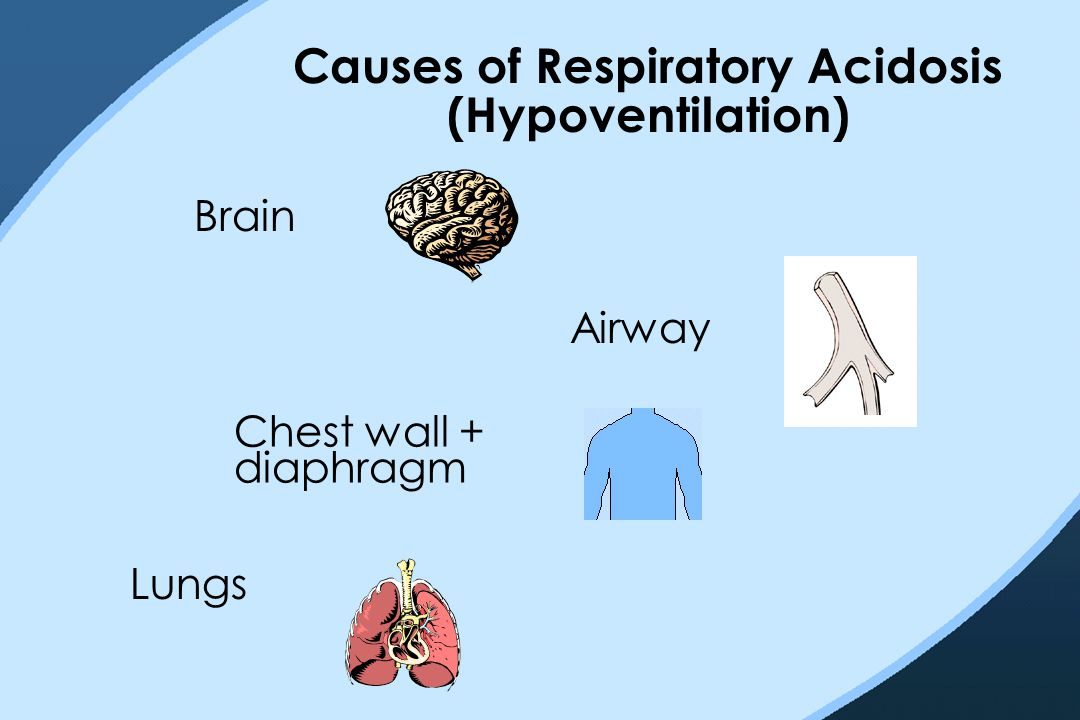 Causes of Respiratory Acidosis (Hypoventilation) Lungs Brain Chest wall + diaphragm Airway