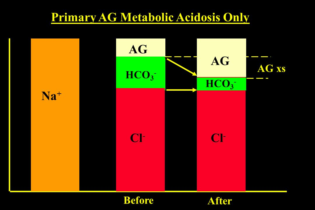 Primary AG Metabolic Acidosis Only Na + Cl - AG HCO 3 - Cl - AG HCO 3 - AG xs Before After