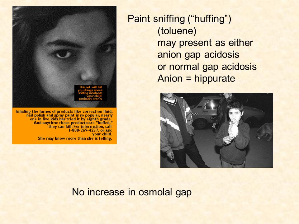 "No increase in osmolal gap Paint sniffing (""huffing"") (toluene) may present as either anion gap acidosis or normal gap acidosis Anion = hippurate"