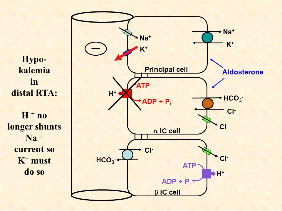 Hypo- kalemia in distal RTA: H + no longer shunts Na + current so K + must do so Na + K+K+ K+K+ Principal cell  IC cell  IC cell HCO 3 - Cl - HCO 3 - Cl - H+H+ ATP ADP + P i H+H+ ATP ADP + P i Cl - Aldosterone