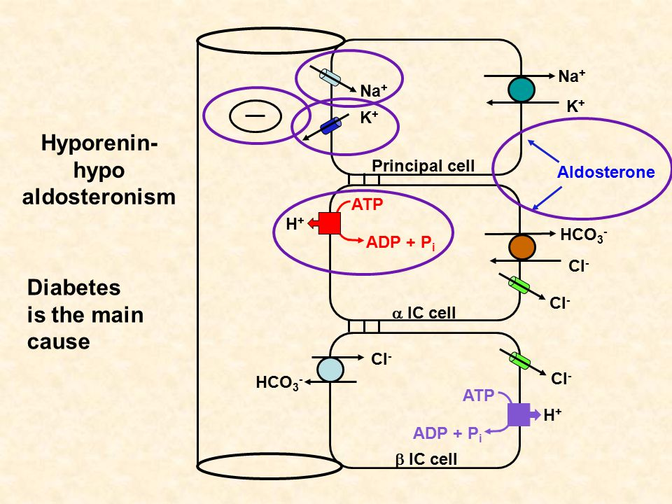 Hyporenin- hypo aldosteronism Na + K+K+ K+K+ Principal cell  IC cell  IC cell HCO 3 - Cl - HCO 3 - Cl - H+H+ ATP ADP + P i H+H+ ATP ADP + P i Cl - Aldosterone Diabetes is the main cause