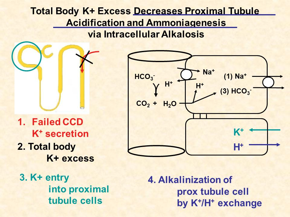 Total Body K+ Excess Decreases Proximal Tubule Acidification and Ammoniagenesis via Intracellular Alkalosis 2.