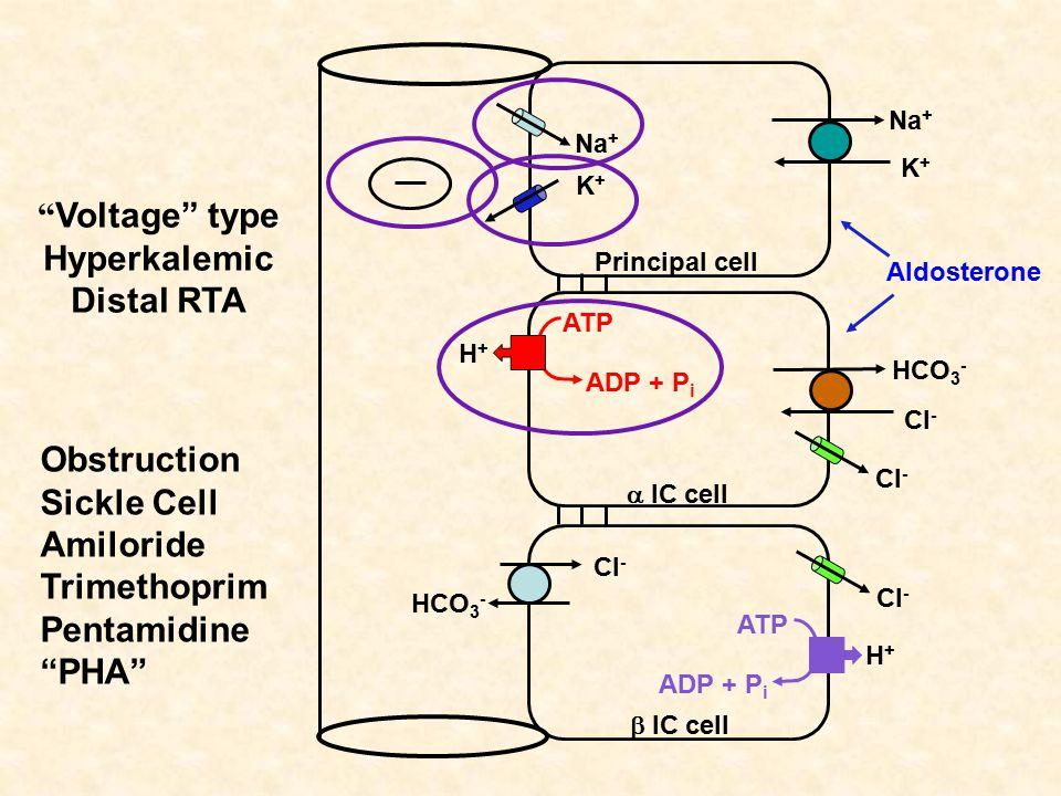 Voltage type Hyperkalemic Distal RTA Na + K+K+ K+K+ Principal cell  IC cell  IC cell HCO 3 - Cl - HCO 3 - Cl - H+H+ ATP ADP + P i H+H+ ATP ADP + P i Cl - Aldosterone Obstruction Sickle Cell Amiloride Trimethoprim Pentamidine PHA