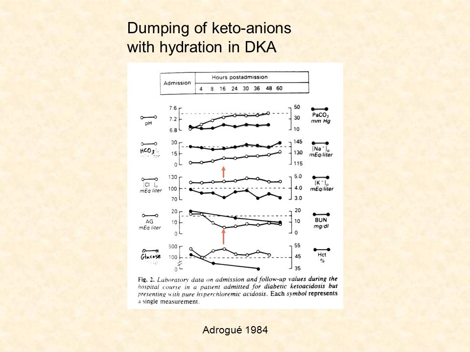 Dumping of keto-anions with hydration in DKA Adrogué 1984