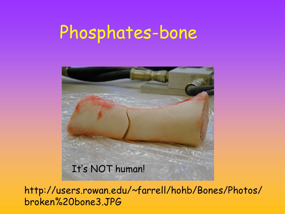 Phosphates-bone It's NOT human.