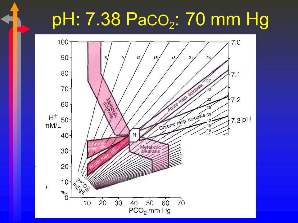 pH: 7.38 P a CO 2 : 70 mm Hg
