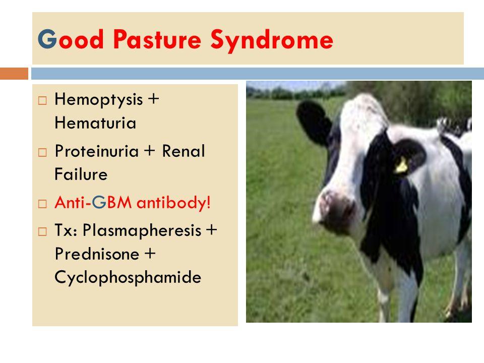 Good Pasture Syndrome  Hemoptysis + Hematuria  Proteinuria + Renal Failure  Anti-GBM antibody.