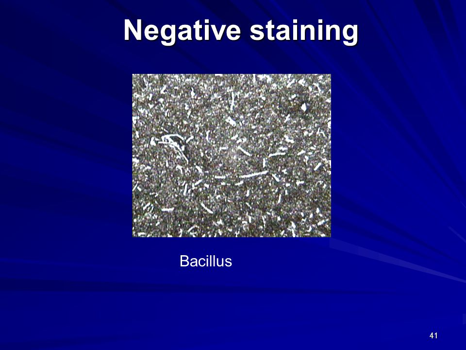 41 Negative staining Bacillus