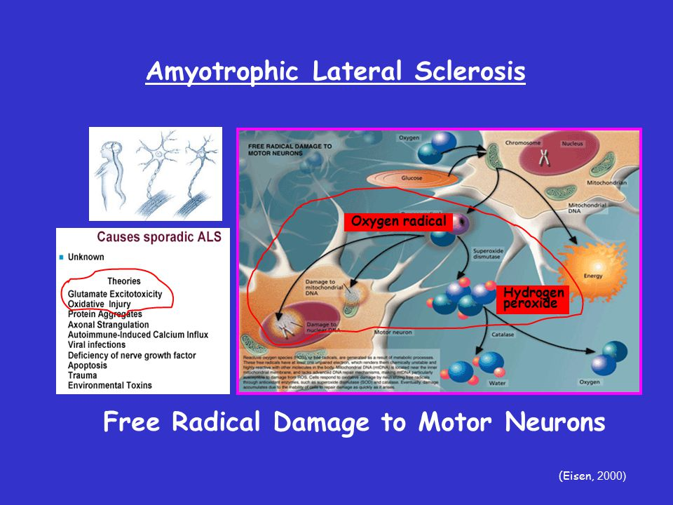 Amyotrophic Lateral Sclerosis (Eisen, 2000) Free Radical Damage to Motor Neurons Hydrogen peroxide Oxygen radical