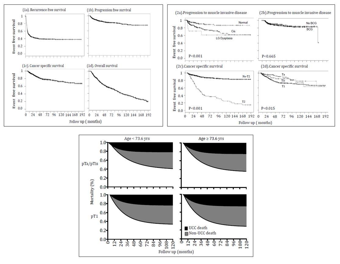 Cox regression analysis - progression Univariable Multivariable
