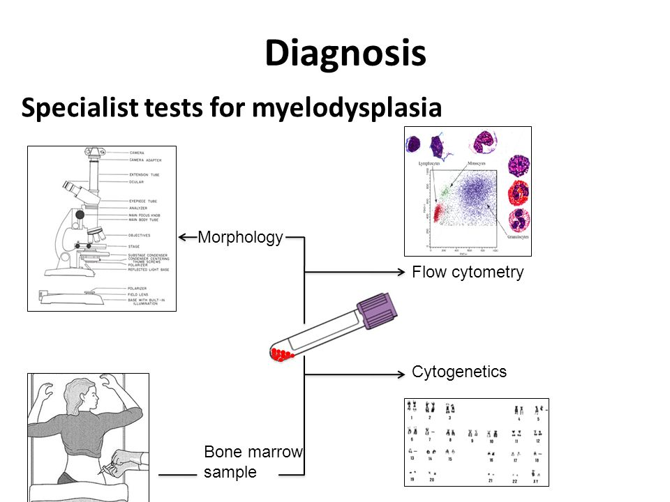 Diagnosis Bone marrow sample Morphology Cytogenetics Flow cytometry Specialist tests for myelodysplasia