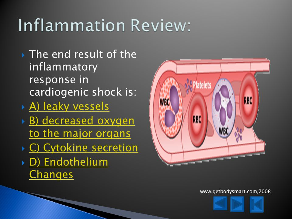  The end result of the inflammatory response in cardiogenic shock is:  A) leaky vessels A) leaky vessels  B) decreased oxygen to the major organs B) decreased oxygen to the major organs  C) Cytokine secretion C) Cytokine secretion  D) Endothelium Changes D) Endothelium Changes www.getbodysmart.com,2008