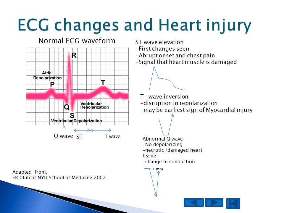 ST wave elevation -First changes seen -Abrupt onset and chest pain -Signal that heart muscle is damaged Abnormal Q wave -No depolarizing -necrotic /damaged heart tissue -change in conduction ST Normal ECG waveform Q wave 1 mm T wave T –wave inversion -disruption in repolarization -may be earliest sign of Myocardial injury Adapted from: ER Club of NYU School of Medicine,2007.