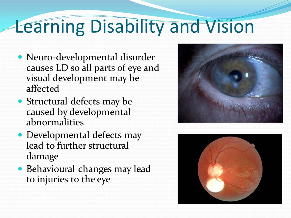 Learning Disability and Vision Neuro-developmental disorder causes LD so all parts of eye and visual development may be affected Structural defects ma