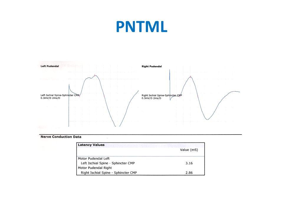 PNTML