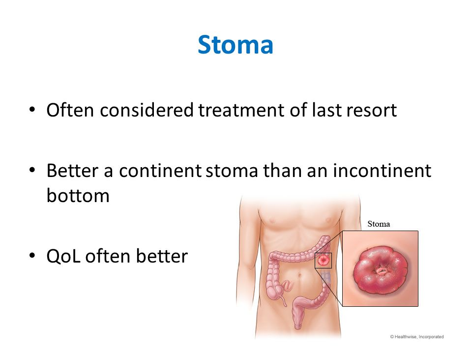 Stoma Often considered treatment of last resort Better a continent stoma than an incontinent bottom QoL often better