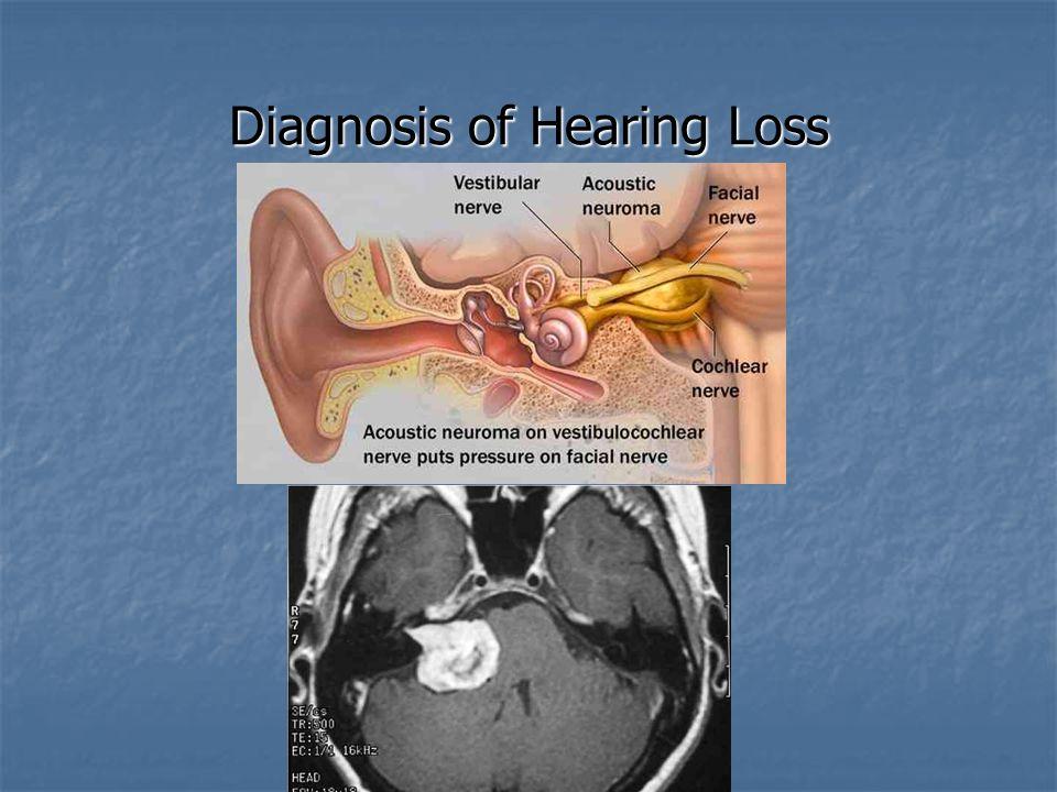 Diagnosis of Hearing Loss