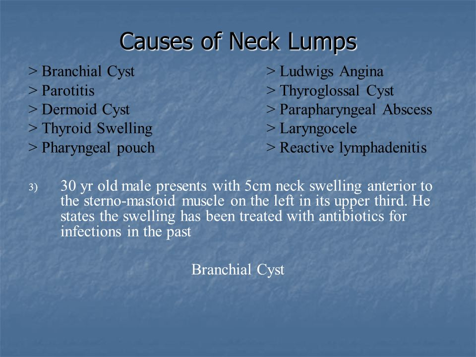 Causes of Neck Lumps   Branchial Cyst:   Arises from embryonic remnants of second branchial cleft in the neck   Most common in young adults   Presents as smooth swelling in front of the anterior border of sternomastoid, at the junction of upper and middle thirds   Treatment is by excision   Treatment may need to be delayed if cyst is acutely infected, leading to branchial fistula