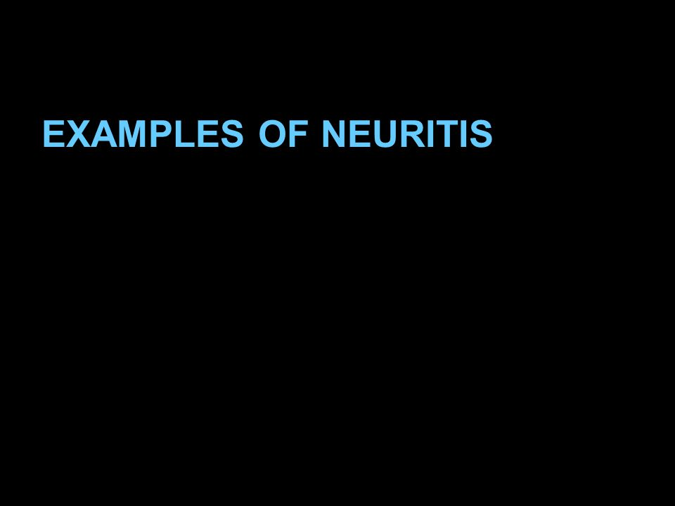 EXAMPLES OF NEURITIS