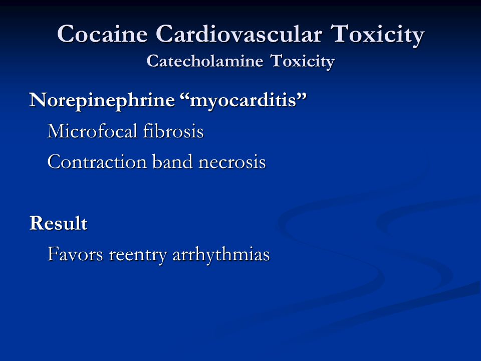 Cocaine Cardiovascular Toxicity Catecholamine Toxicity Norepinephrine myocarditis Microfocal fibrosis Contraction band necrosis Result Favors reentry arrhythmias