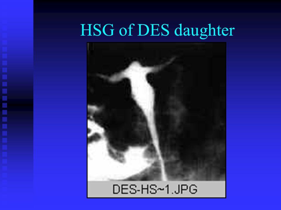 HSG of DES daughter