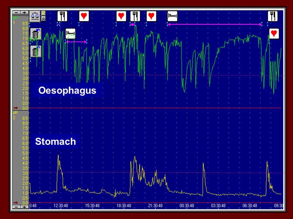 Stomach Oesophagus
