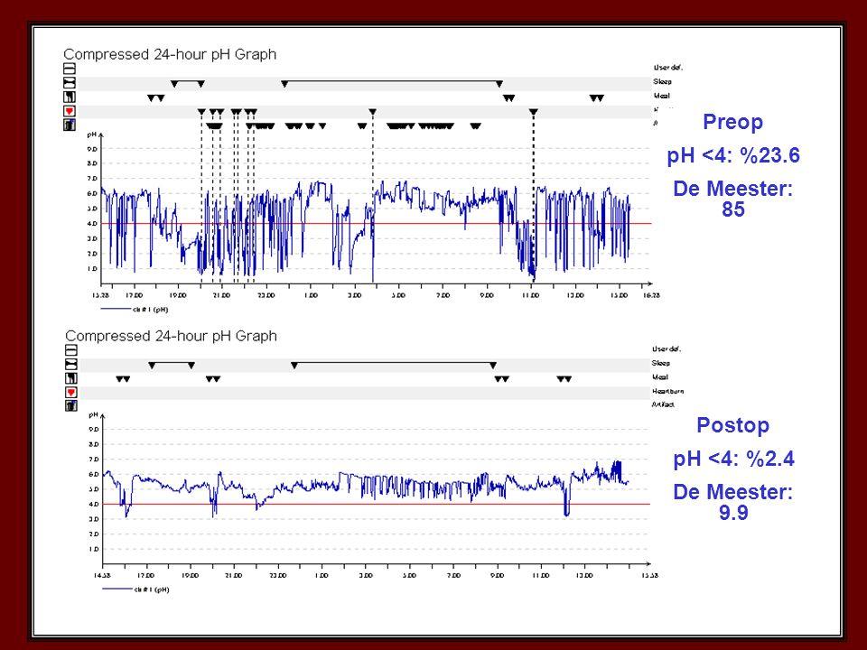 Preop pH <4: %23.6 De Meester: 85 Postop pH <4: %2.4 De Meester: 9.9