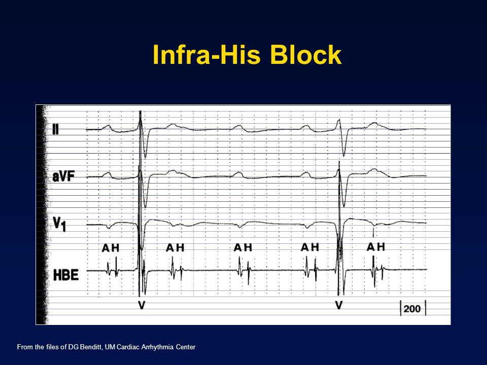 Infra-His Block From the files of DG Benditt, UM Cardiac Arrhythmia Center