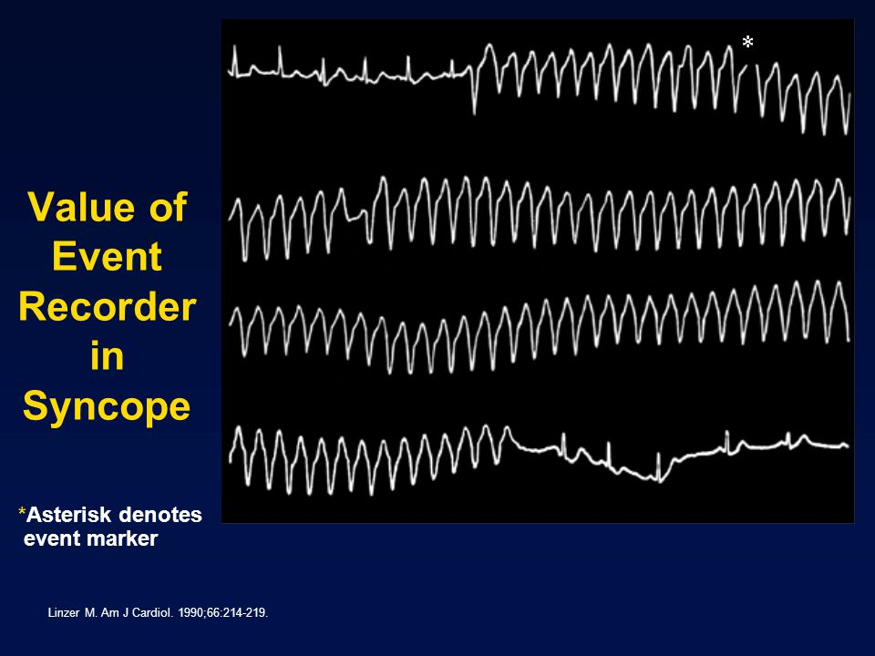 Value of Event Recorder in Syncope Linzer M.Am J Cardiol.